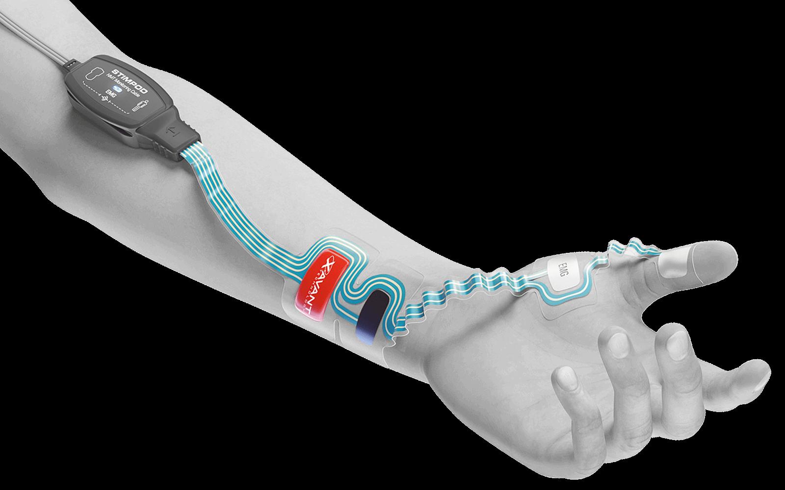 EMG on arm - grey - 1600x1000px